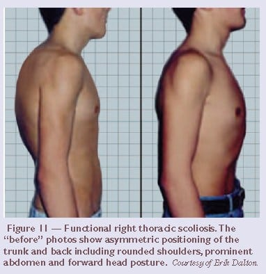 Inflammation from adult scoliosis