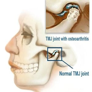 how to fix tmj popping