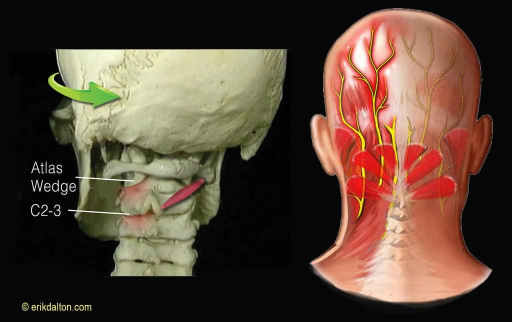 Occipital Neuralgia Headaches