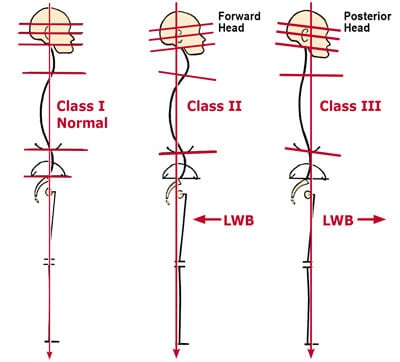 Figure 3: Neck and jaw postural patterns. Any alteration in head/neck/thorax symmetry also profoundly affects jaw alignment. When comparing Class II and HI deviated postures to Class I, Normal, notice how the line of weight bearing falls posterior to the plum line in Class II (retrusives) and anterior in Class III (protrusives). Class IIs frequently experience TMJ dysfunction as the mandibular condyles and disc are crammed into the fossa. Adapted from Ross Pope with permission, 2003.