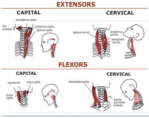 Figure 4 : Hypercontracted head/neck extensor muscles and retrusive jaws typically occur in tandem. The Class II is the second most commonly seen neck/jaw dysfunction, preceded only by Class IVs. Clients develop this retrusive jaw/forward-head posture when tight and SHORT capital and cervical extensor muscles overpower all the neck's flexors (except SCMs). Clients presenting with extensor-dominate necks are easy to spot, as shortened extensors create a cervical-bowing pattern with the apex of the hyperlordotic curve peaking at about C4-5. All structures at the apex of the curve are particularly vulnerable to disc, ligament and facet degeneration.