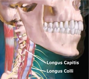 Figure 6: Anterior longitudinal ligament. The cervical spine's ligament is a much thinner and weaker structure than the posterior. When reciprocally weakened, longus capitis muscles allow the SCMS to cock the head and bow the neck, the anterior longitudinal ligament overstretched creating an unstable cervical spine.