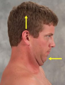Figure 3: Chin-tucking exercise. Client is instructed to tuck his chin while attempting to rid his head toward the ceiling in a count of three, and then relax. Repeat this maneuver 10 times, twice a day to strengthen longus capitis/coli.