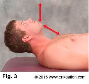 The most commonly seen substitution pattern (SCMs, anterior scalenes, longus colli, and longus capitis) causes the chin to reach toward the ceiling rather than tucking into the chest during the first two inches of flexion efforts (Fig. 3).