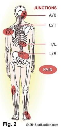 Janda Upper Crossed Neck Shoulder And Rotator Cuff Pain