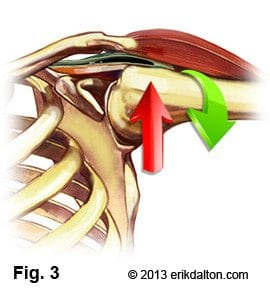 Postural overdevelopment of these muscles creates a deltoid shear (crossing of rotator cuff under AC joint), leading to shoulder impingement, tendinitis and bursitis syndromes (Fig. 3).