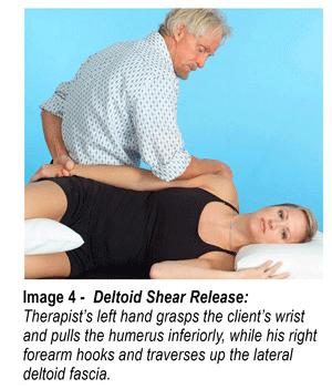Image 4 - Deltoid Shear Release