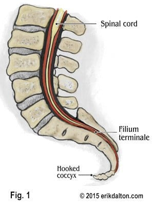 Hooked Coccyx Dural Drag Butt Pain Lower quarter of the filum; hooked coccyx dural drag butt pain
