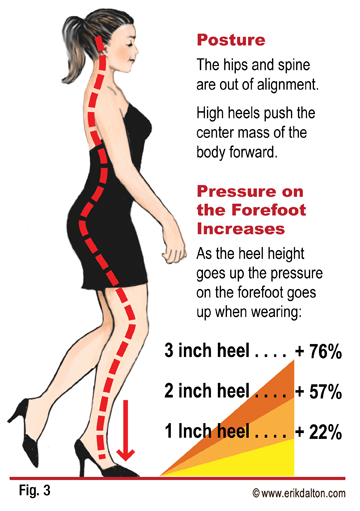 As heel height increases pressure on the forefoot increases