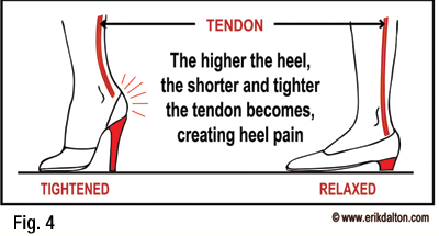 Ongoing use of high heels will cause a shortened and contractured achilles tendon.
