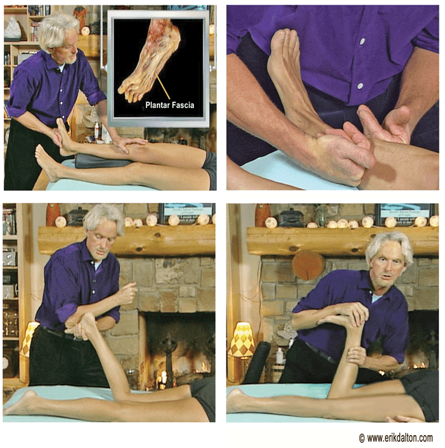 Erik Dalton treats the lower leg to reduce pain caused by high heels.