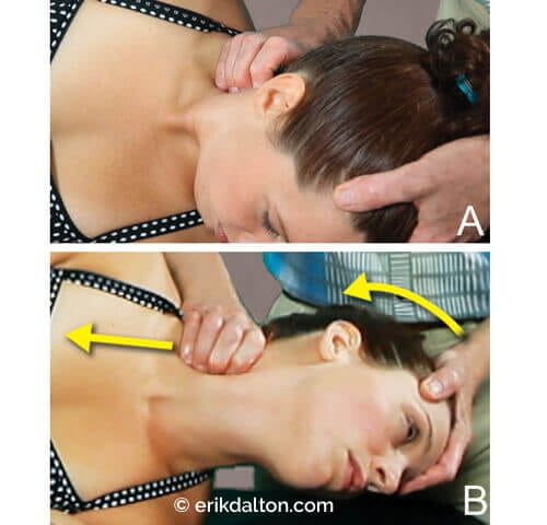 Image 3: Interscalene triangle: (A) With the client's head left rotated, my soft-cupped fingers wade behind the sternocleidomastoid and onto the scale attachments at the transverse processes. (B) By left-rotating and slowly extending the client's neck, I palpate for scalene adhesions and pin stretch to release.
