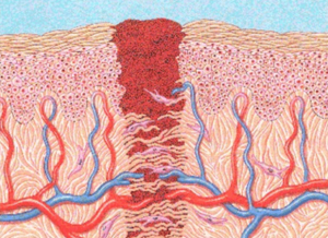Fig. 2: Illustration of a wound as it is healing. Note the epidermis and dermis with the blood clot.