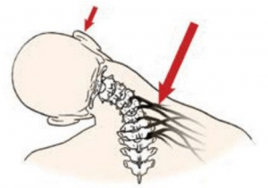 Fig. 2: Overstretched nerves and connective tissue cause the brain to layer the area with protective spasms that may lead to contractures.