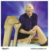 With the knee flexed, my fingers and thumb were unable to budge the fibula in an anterior direction and any attempt to pressure it back into place replicated the intense pain Dr. Smith identified as the source of his problem (Fig. 8).