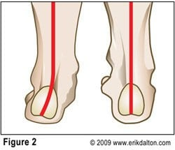 If the navicular and cuneiforms resist this spring test and the mid-foot appears flat, the arch is pronated. As we recall, the most common lower extremity asymmetry is foot pronation. Weakness of tibialis anterior, peroneus longus and the plantar aponeurosis (Stirrup Spring System), results in a valgus subtalar joint (STJ) accompanied by a dropped navicular bone (Fig. 2).