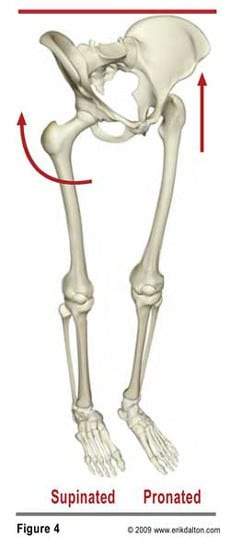 In my experience, the most overlooked and least appreciated area of compensation arises as the femoral heads become asymmetrically positioned in the acetabula. For example, when the pronated left foot internally rotates the thigh and the supinated right foot externally rotates the thigh, one would be walking sideways with each step (Fig. 4).