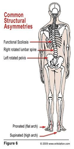 Notice in Fig. 6 how combined pronation and supination not only torsion the pelvic bowl, but initiate a functional lumbar scoliosis that spreads its tentacles through the thoracic and cervical spines.