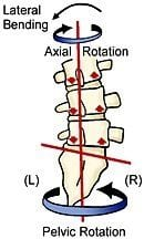Figure 2. Backward sacral torsion. Courtesy of Erik Dalton.