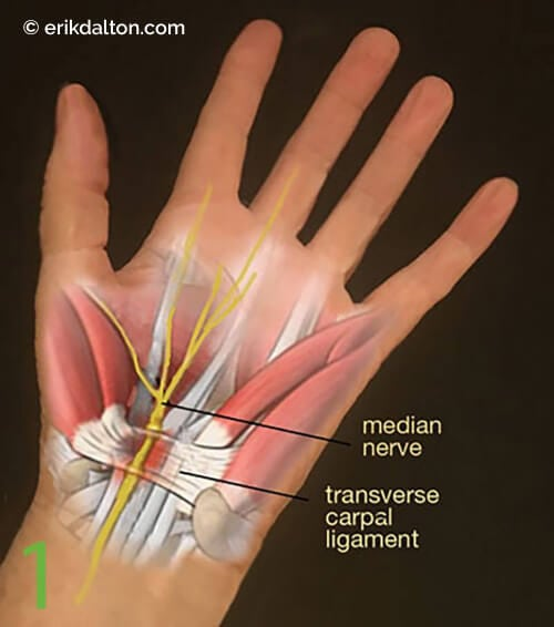 Image 1: The relationship of the median nerve and the transverse carpal ligament.