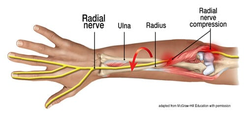 Image 2: The elbow's radial head smoothly rotates around the ulnar bone. Adapted from McGraw-Hill Education with permission