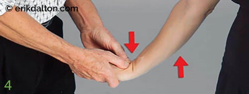 To create space between the proximal carpal row and the radius/ulna, the therapist extends and gently tractions the elbow and wrist up to, but not entering, the painful barrier. With the therapist's thumbs positioned on the proximal carpal row, the client slowly palmar-flexes the wrist against the therapist's resistance to a count of five, and then relaxes. The therapist's fingers extend the wrist and traction the arm with the intent of spreading the tunnel, gliding the carpals free of the radius/ulna, and stretching the median nerve. Repeat 3–5 times, and then retest the ability of the third and fourth digits to oppose the thumb.