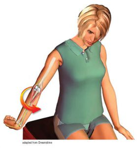 Image 6: The client extends the elbow and curls the fingers around the thumb. She internally rotates the arm, retracts the scapula, and left sidebends her head. To enhance the nerve flossing stretch, she slowly abducts her arm and reaches toward the floor. Repeat daily. Adapted from Dreamstime.