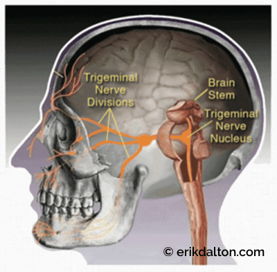 Image 2: Head pain arises from compressed upper cervical dura, which feeds the trigeminal nucleus. @CCND, Winnipeg