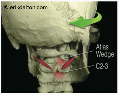 Img 3: An atlas wedge developes as a chronic OCI spasm fixates the right-rotated C1 on C. @Lippincott Williams & Wilkins