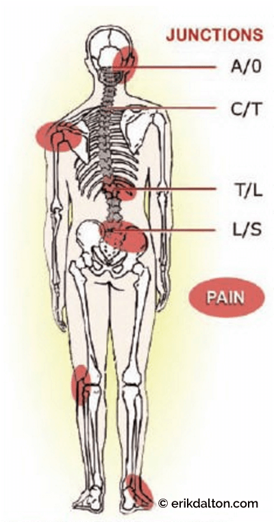 Figure 6: Foot hyperpronation shortens the leg, causing painful postural compensations detailed in highlighted areas. Courtesy of Erik Dalton.