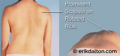 Figure 3: Scoliokyphosis. The above right structure scoliosis is formed by coronal and sagittal plane influences. The ribcage hump becomes more prominent during forward bending. Courtesy of Erik Dalton.