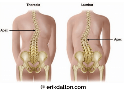 Figure 4: Right thoracic and left lumbar scoliosis. At the apex of the right thoracic curve, the vertebrae are sideband left and rotated right. Adapted from Bill Allen with permission.