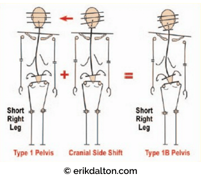 Figure 2: Notice in the Type 1 pelvis how the cranium has successfully compensated of the short right leg and sacral base unleveling. When cranial side shift is added, the entire structure decompensated leading to pain syndromes. Reprinted from Ross Pope with permission, 2005.