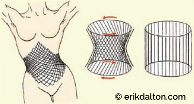Figure 3: Trunk stabilizers form a perfect antigravity cylinder support system that lifts the thorax with each step. Courtesy of Erik Dalton.