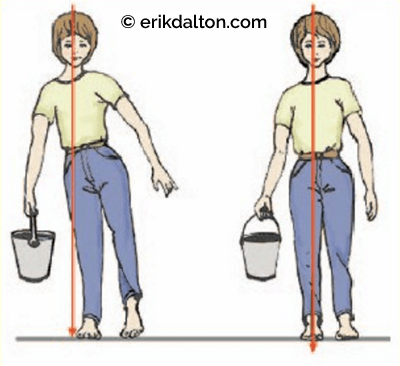 Figure 8: Compensation posture from sustained compressional loading. MediClip, Lippincott, Williams & Wilkins, 2006.