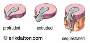 Image 2: Progression of disc degeneration