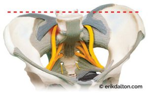 Image 5: A torsioned pelvic bowl causes the anterior iliolumbar ligaments to entrap a branch of the sciatic nerve.