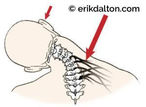 Image 2: Overstretched nerves and connective tissue cause the brain to layer the area with protective spasm that may lead to contractures.