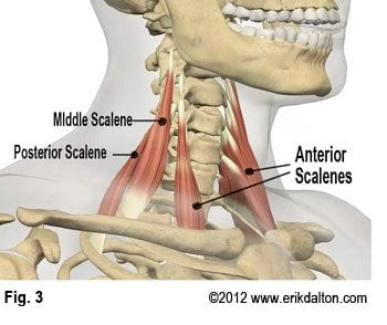 Cervical nerves and vessels often become trapped between fibrotic anterior and middle scalene tendons as they enter the thoracic inlet (Fig. 3).