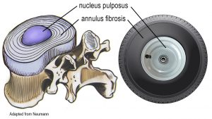 Image 3: The annulus resembles a radial tire encapsulating the (hubcap) nucleus.
