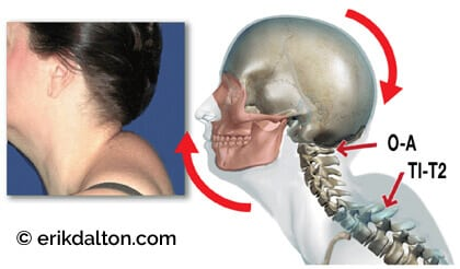 how to fix hump on back of neck
