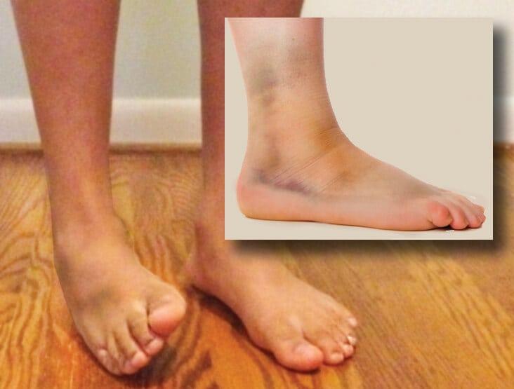 Image 1: Grade 2 inversion ankle sprain.