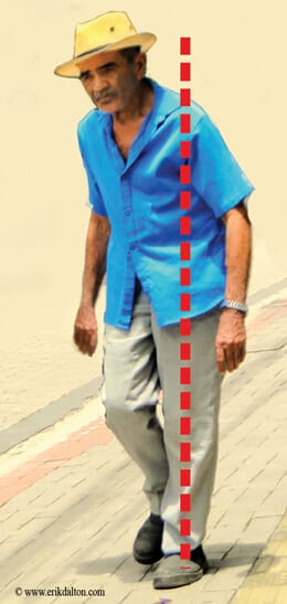 Image 2. Homolateral gait unlevels the eyes, initiates head righting reflexes, and distorts balance.