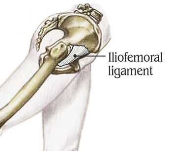 Figure 6. The Iliofemoral ligament can bind down the anterior hip capsule preventing ipsilateral hip extension during gait.