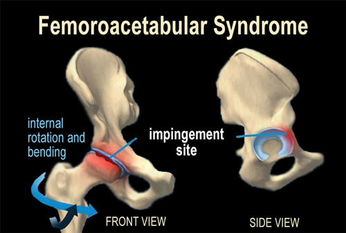 Fig. 2 -Femoroacetabular Syndrome