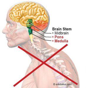Image 2. Pondomedulary Junction - the powerhouse of posture
