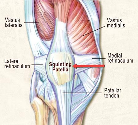 lateral knee retinaculum
