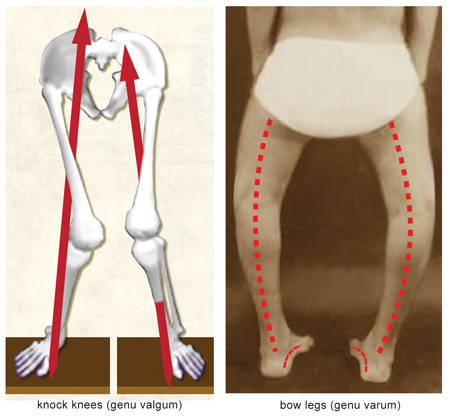 This abnormal positioning of the patella is a possible source of non-specific knee pain, and it can be caused by postural faults
