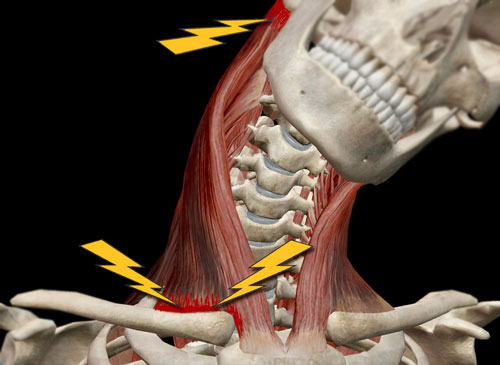 Fig. 1. A side-to-side whiplash injury strain to muscles, nerves, and joints.