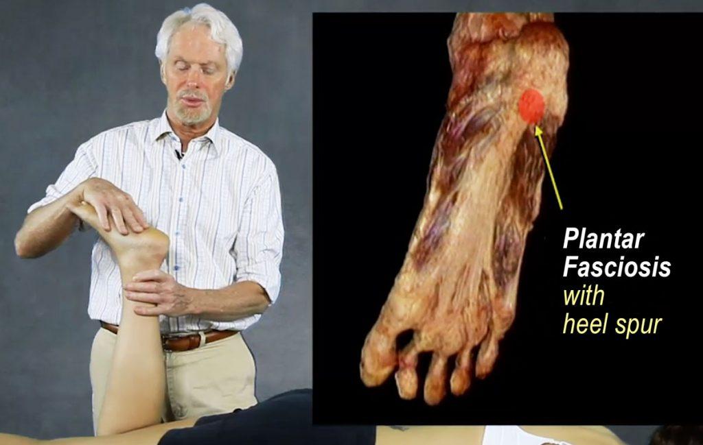 Fig. 1 - Plantar Fasciosis with heel spur